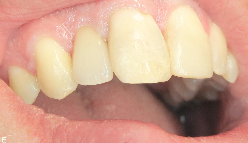 tandläkare monica persson bollebygd