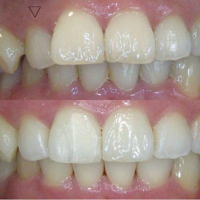 Tann före och efter